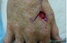 Skin Cancer Surgery on Hand