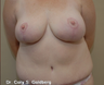 39 year old female treated for excess breast and abdominal fat/tissue