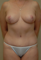 58 year old female with abdominal fullness and large breasts