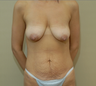 37 year old female treated for excess abdominal skin, fatty tissue, stretch marks/deflated breast tissue
