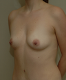 38 year old mother of 4 - concerned re: excess abdominal tissue and deflation to breast tissue, and breast asymmetry.