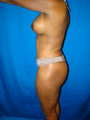 Breast Lift with Implants and Tummy Tuck (Abdominoplasty)