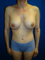 Mommy Makeover, Revision Breast Surgery, Tummy Tuck (Abdominoplasty)