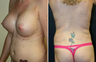 Breast Augmentation, Liposuction, Butt Lift