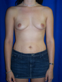 Breast Augmentation, Mommy Makeover, Tummy Tuck (Abdominoplasty)