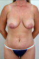 Mastopexy and Abdominoplasty