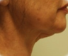 Face lift and Neck Lift