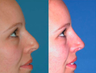 Non-surgical Nose Job - Non-surgical rhinoplasty