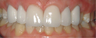 Old crowns treated with new whitest porcelain crowns and veneers