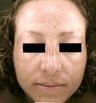 Pro-Fractional plus Chemical Peel