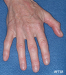 Radiesse Filler Augmentation of the Hands