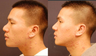 Revision Asian Rhinoplasty