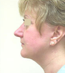 Facelift and Neck Lipoplasty