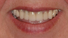 Porcelain Veneers and Dental Crowns