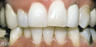 Teeth Whitening Smoking
