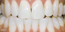 Teeth whitening genetic