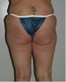 Thigh and Buttock Lift