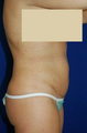 Tummy Tuck, liposuction