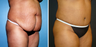 Tummy Tuck (Abdominoplasty) with Liposuction