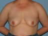 Patient underwent a Breast Lift.