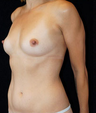 Breast Implants & Liposuction of tummy
