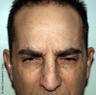 Botox Treatment for Forehead Wrinkles