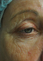 63 Year Old Female Treated for Wrinkles Around the Eye with Total Fx