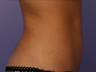Zeltiq CoolSculpting- Lower Abdomen
