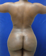 Brazilian Butt lift via fat transfer
