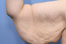 38 year old female treated for arm laxity following massive weight loss