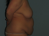 Patient underwent a breast lift (mastopexy),