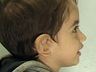 Total Ear Reconstruction Surgery for Microtia