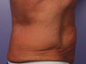 CoolSculpting by Zeltiq to Love Handles/Flanks