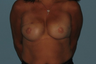 Patient had a Breast Reconstruction.