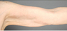 Smart Lipo: Upper Arm Area