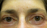 55 year old woman treated for droopy eyelid and eyelid bags