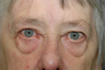 Browlift with upper and lower blepharoplasty.