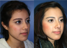 21 year Old Female, primary Rhinoplasty
