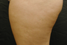 Cellulite Treatment - Cellulaze