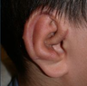 Microtia- ear reconstruction for kids by Dr Kasrai, Toronto Female Plastic Surgeon