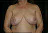 Breast, Breast Lift, Breast Reduction, Mastopexy