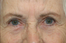 Right lower eyelid full thickness defect