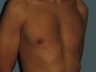 VASER LipoSelection performed on his chest.