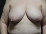 Nipple reconstruction