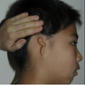 Microtia aka small Ear