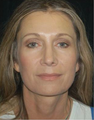 Brow Lift with Facial Fat Grafting
