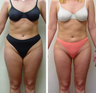 28 yr old woman requesting liposuction for resistant fat areas