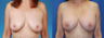 Revision Breast Surgery