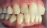 Severe arch collapse treated with Invisalign