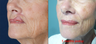 65-year-old with poor lip scarring repaired with local flap reconstruction